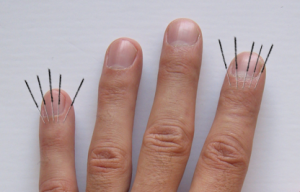 finger-joints-5-needles