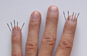 finger-joints-5-needles
