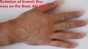 sedation-of-the-branch-dryness
