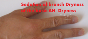 sedation-of-the-branch-dryness-on-basic-dryness