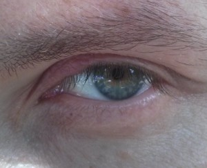 Stye eye after treatment