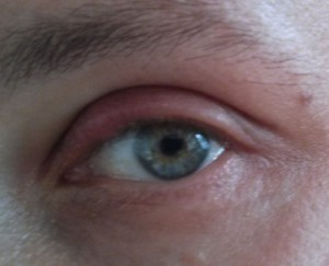 Stye eye before treatment