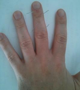 Stye treatment sujok middle finger-1