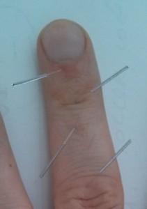 Stye treatment sujok middle finger-2