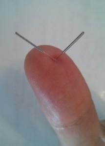 Stye treatment sujok thumb